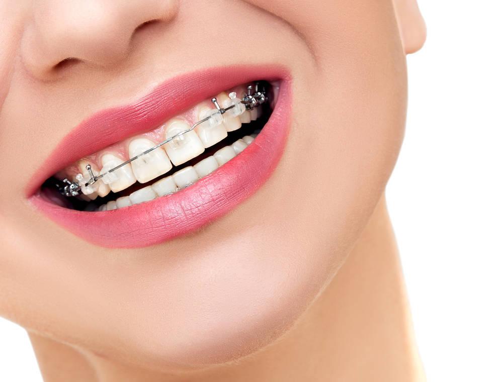Así es el proceso de una ortodoncia