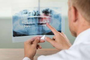 La generación ósea en los dientes