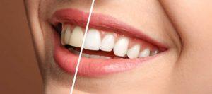 Conoce la tecnología de blanqueamiento dental Zoom