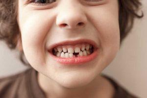 Todo lo que debes saber sobre la agenesia dental